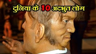 [Hindi] दुनिया के 10 अदभुत लोग | 10 Unusual People Born With Extra Body Parts |