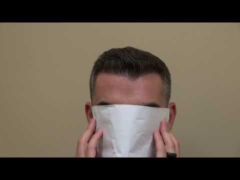 best-fue-hair-transplant-doctor-california-at-san-francisco-sf-bay-area-&-san-jose-bald-hair-loss
