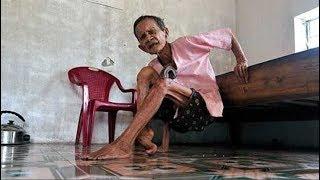 Chuyện Lạ Việt Nam - Cụ Bà 100 Tuổi Mọc Sừng ở Chân..!!!