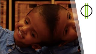 A sziámi ikreket szétválasztó magyar csapat nyomában