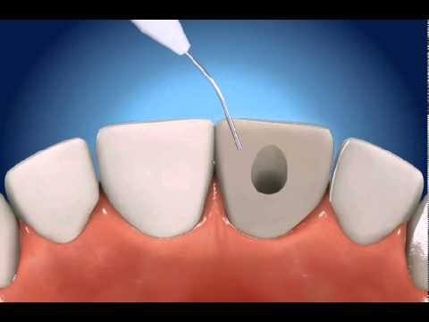 Root Canal Therapy Rct The Gentle Dentist Youtube