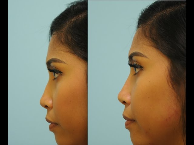 Injectable Rhinoplasty with Cannula by Dr. Sam Lam