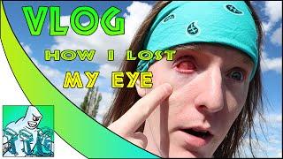 VLOG | HOW I LOST MY EYE