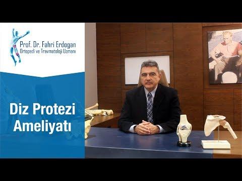Diz Protezi Ameliyatı | Prof. Dr. Fahri ERDOĞAN
