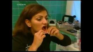 24 year old woman denture wearer gets Dental implants(anyone have this in more resolution?)