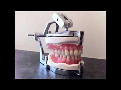 Same Day Denture Repair Lab Service. Partial Valplast