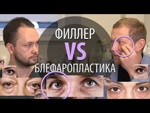 Мешки под глазами: коррекция носослезной борозды или блефаропластика?