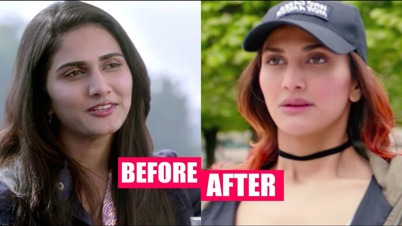 Vaani Kapoor Plastic Surgery Gone Wrong Horribly Youtube