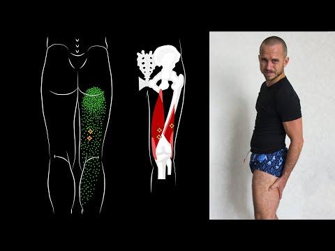 Болит от бедра до колена