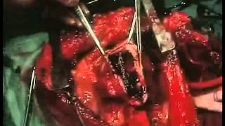 1965 Left Ventricle Aneurism Resection