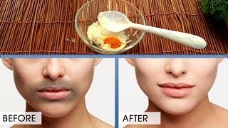 Remove Darkness Around Mouth & Lips, Black Spots & Hyper-pigmentation Causes & Treatment Urdu Hindi