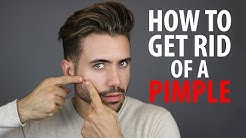 hqdefault - Pimples Removal Tips For Men