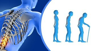 What is Osteoporosis? | Ways to prevent and treat osteoporosis | Dr. P V Satyanarayana Murthy