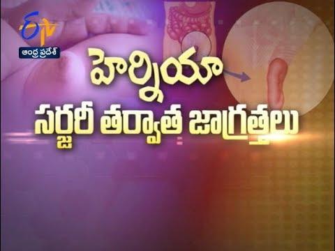 Care After Hernia Surgery | Sukhibhava | 29th June 2018 | ETV Andhra Pradesh