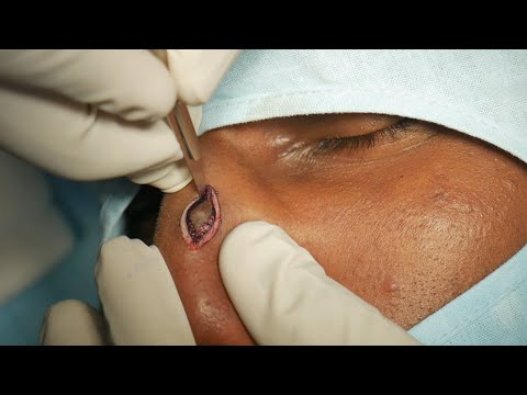 Easy Painless Scar Removal on Nose | Dr. Sunil Richardson