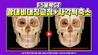 윤곽3종 실제수술전후CT | 광대 비대칭교정, 사각턱축…