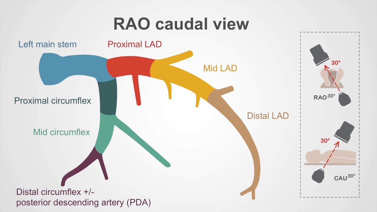 The left coronary artery a walk through youtube the left coronary artery a walk through pooptronica Images