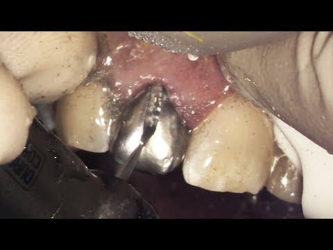 Dentist gave him a silver front tooth... 😢 Let's Fix it! (Porcelain Crown Procedure)