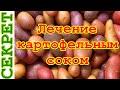 Как лечиться картофельным соком
