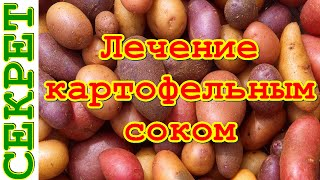 видео Картофельный сок — польза и вред