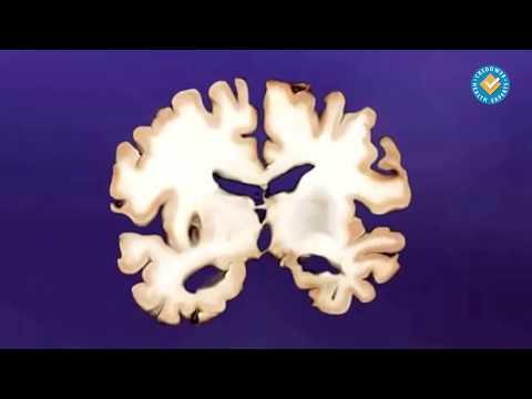 Мозъчносъдова болест и деменция