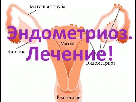Эндометриоз - причины, симптомы и лечение
