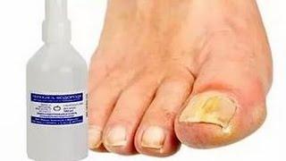 Как лечить грибок  ногтей перекисью водорода(Лечение грибка ногтей и уход за ногтями http://ali.pub/piflo Лечение грибка ногтей перекисью водорода наиболее прос..., 2016-01-14T13:42:32.000Z)