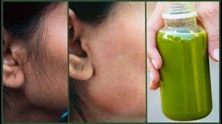 Heat treatments Facial
