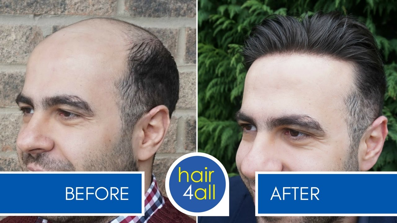 How To Apply Attach A Non Surgical Hair Replacement