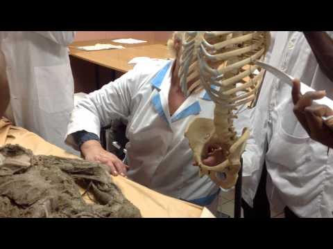 Anatomy class - internal iliac artery