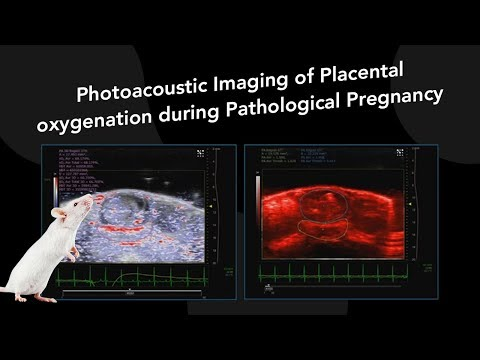 February 2018: Photoacoustic Imaging of Placental oxygenation during Pathological Pregnancy
