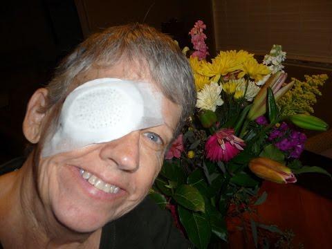 Что такое катаракта: причины, симптомы и лечение