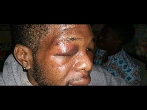 un jeune burkinabe agresse par des burkinabes en allemagne