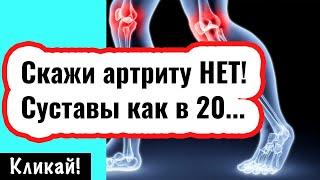 Артрит суставов Профилактика и лечение в домашних условиях Народная медицина