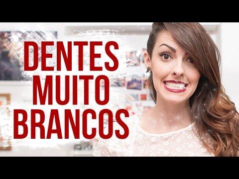 Clareamento Dental Tudo Que Voce Precisa Saber Youtube