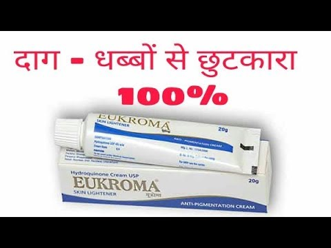 How To Remove Melasma - Hyperpigmentation | Eukroma cream, uses, side-effects, price  review in hind