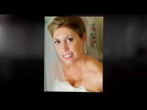 Dental Makeover Tallahassee, FL Wedding Day Smile by Dr. Delopez
