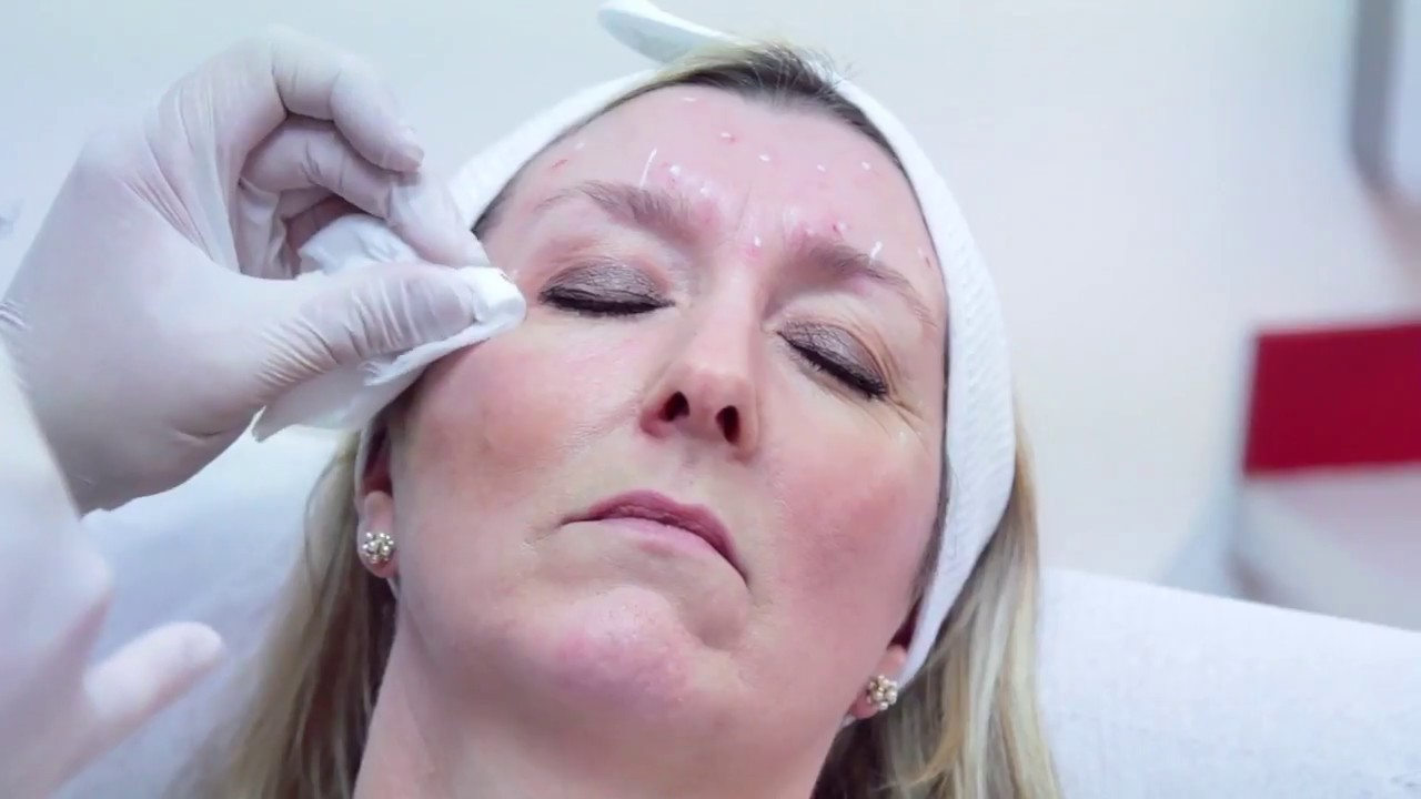 Botox Courses London | Accredited Botox and Dermal Filler Training UK