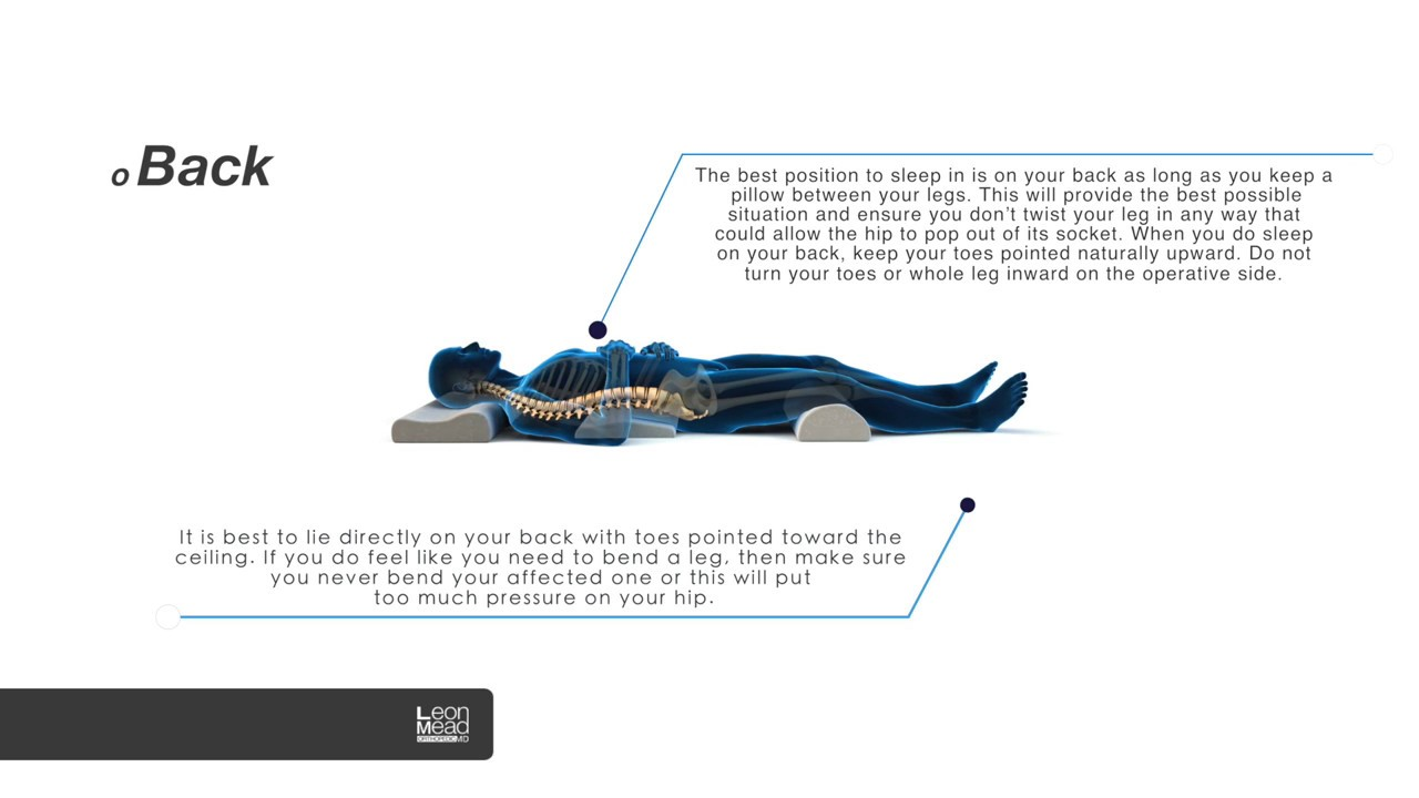 sleeping positions after a hip replacement