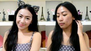 Hi semuanya. Karena byk yg mnt buat aku bikin acne story, jd ak bua...