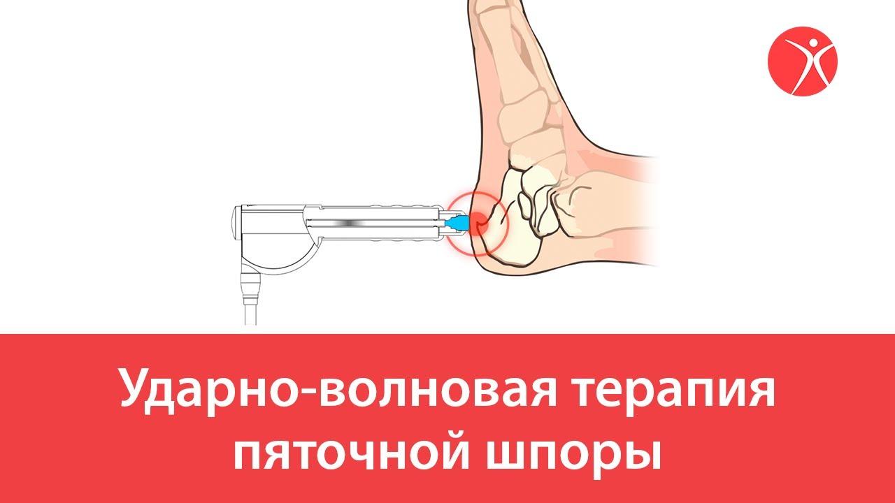 Ударно-волновая терапия пяточной шпоры. Видео-схема