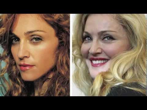 Madonna Plastic Surgery Pictures