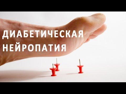 Что такое диабетическая полинейропатия?