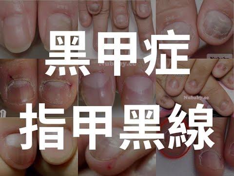 黑甲症(指甲黑點 黑線) 原因與處理