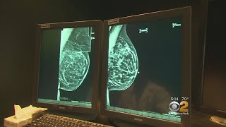 Women With Early Stage Breast Cancer Can Skip Chemo, Study Says