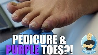 PEDICURE CAUSED PAINFUL PURPLE PINKY TOES?