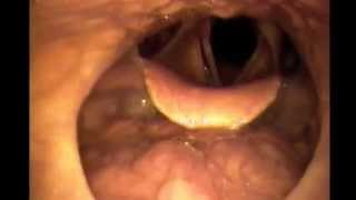 Where Snoring Comes From (Sleep Endoscopy)