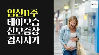 임신11주 태아 모습 산모증상 검사시기