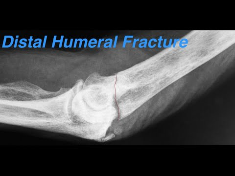 distal humeral fractures