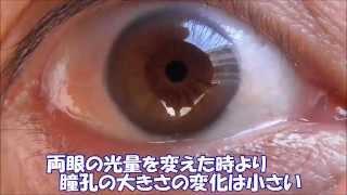 瞳孔の観察器~片眼の光量変化が、両眼の瞳孔を変化させる~ thumbnail